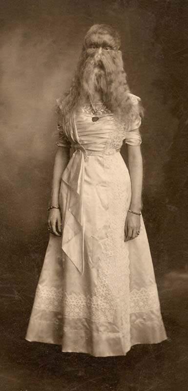 Алиса Элизабет Доэрти - девушка с синдромом оборотня